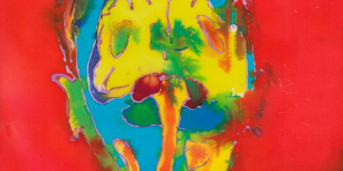 A Woman Diagnosed With MS Is Turning Her Own Brain Scans Into Art