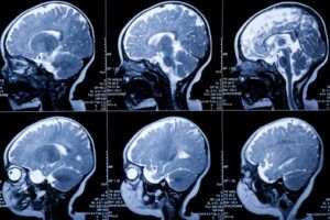 NJ Hypoxic Ischemic Encephalopathy Lawyer