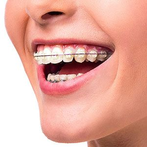 A Long-Term Orthodontic Strategy Could Help Ensure an Attractive Smile Later in Life