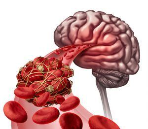 New Jersey Stroke Medical Malpractice Lawyers