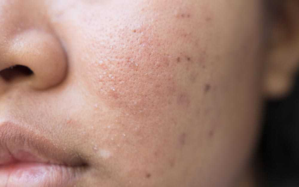 Bad Habits That Make Acne Scars Worse