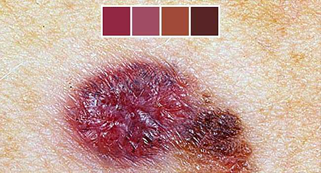 Slideshow: Precancerous Skin Lesions and Skin Cancer