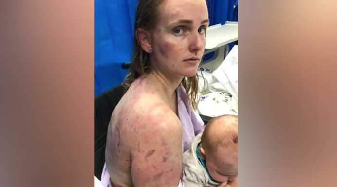Mom who shielded infant daughter from tennis ball-sized hail shares photos of her injuries