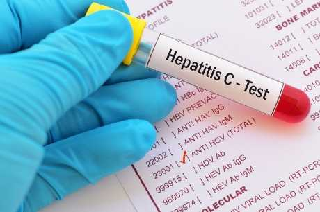 Baby Boomers: Get tested for hepatitis C ASAP