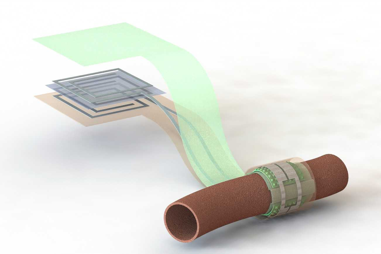 This sensor can monitor blood flow