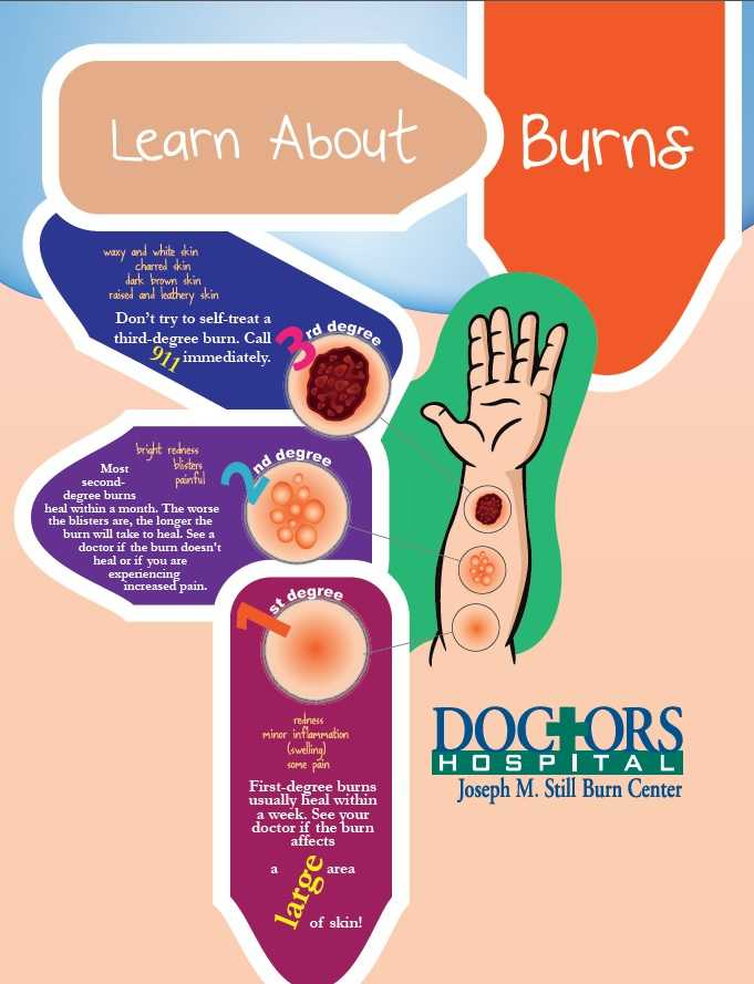 National Burn Awareness Week: Learn About Burns