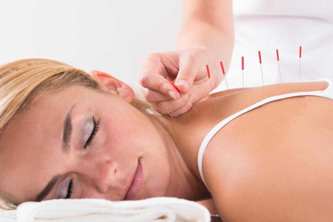 Does acupuncture work for stress and anxiety?