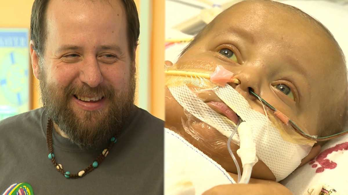Father becomes living donor, saves son's life after losing 30 pounds
